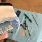 How We Create Custom Smiles, Step Two