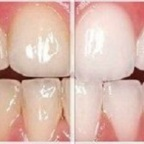 Whitening Options