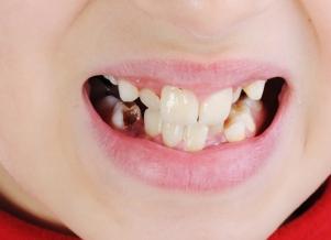 Bad teeth, closeup