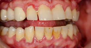 Gingivitis Plaque