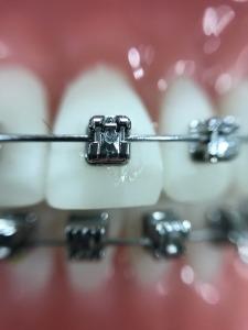 braces (2)
