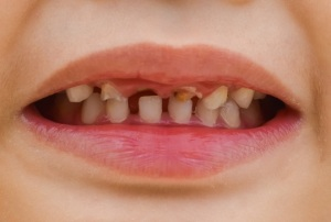 Baby tooth decay 2