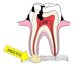 ABSCESS DIAGRAM