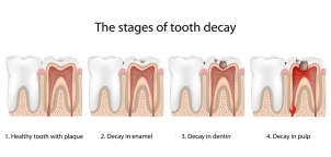 Cavity stages