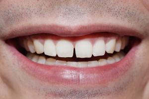 diastema gaps spacing