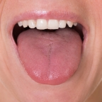 What Your Tongue Says About You