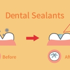 What are Dental Sealants, Who Should Get Them, and How Long Do They Last?